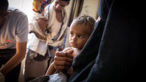 Yemen Açlıkla Savaşıyor