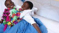 Tanzanyalı Ünlü Siyam İkizleri Hayatını Kaybetti