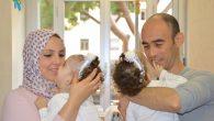 Vatikan Hastanesi'nde Yapışık İkizleri Ayırdılar